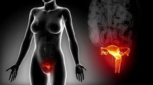 Νέοι 3D υπέρηχοι ανιχνεύουν ανωμαλίες στα γεννητικά όργανα